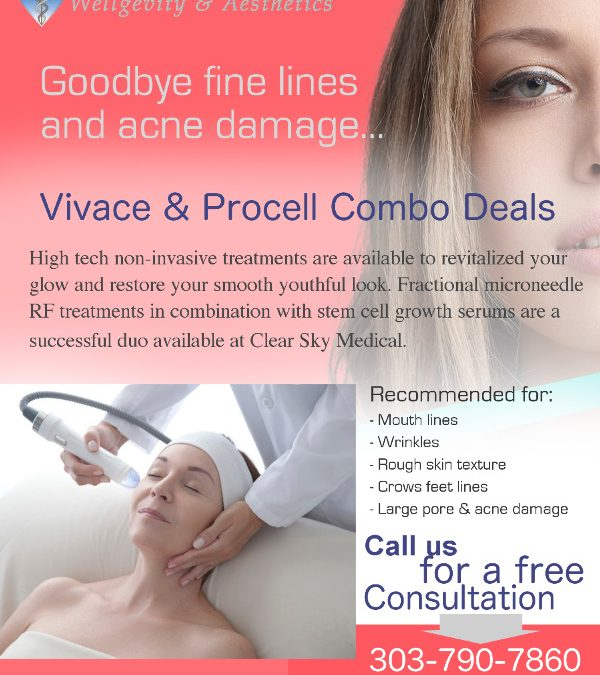 Procell and Vivace Combo Deals